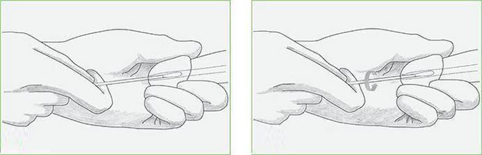 Может ли забеременеть девственница от пальца руки мужчины в смазке или петтинга, если полового акта не было?