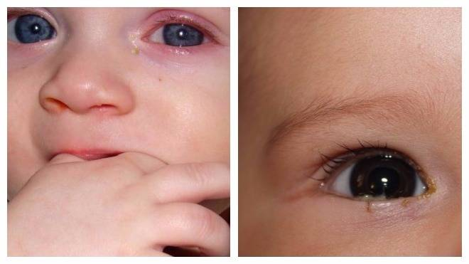 Слезится глаз у ребенка, появляются гнойные выделения: что делать родителям новорожденного?