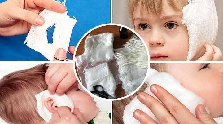Постановка согревающего компресса на ухо ребенку алгоритм - педиатор