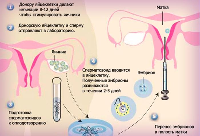 Если вы решились на эко, или что нужно знать о процедуре экстракорпорального оплодотворения