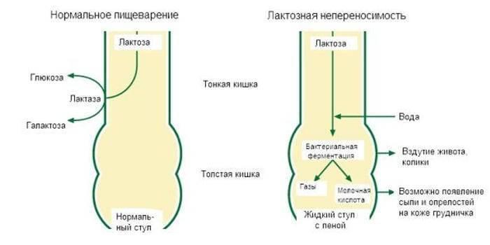 Симптомы заболеваний, диагностика, коррекция и лечение молочных желез — molzheleza.ru. лактазная недостаточность у грудничка: причины, симптомы, лечение, диагностика лактазная недостаточность у грудничка: причины, симптомы, лечение, диагностика