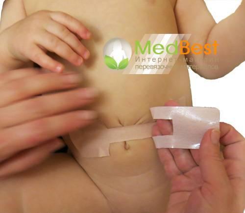 Виды пластырей при пупочной грыже у новорожденных детей, особенности применения