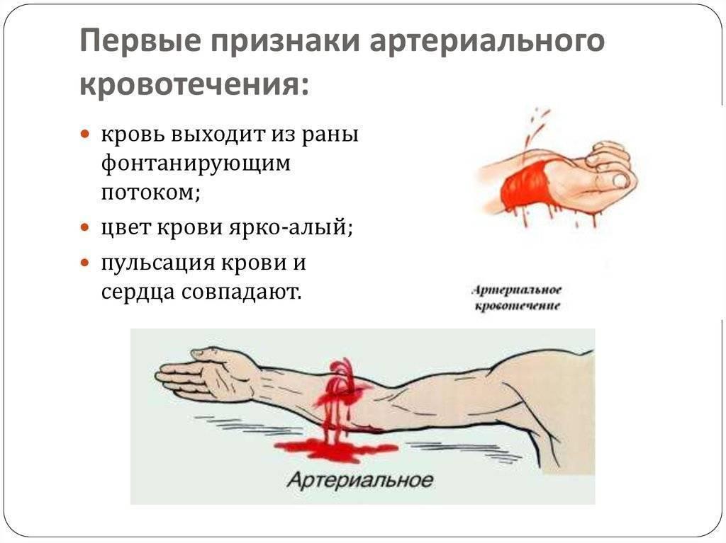 Как остановить кровотечение при месячных, если оно очень обильное, в чем причины такого состояния?