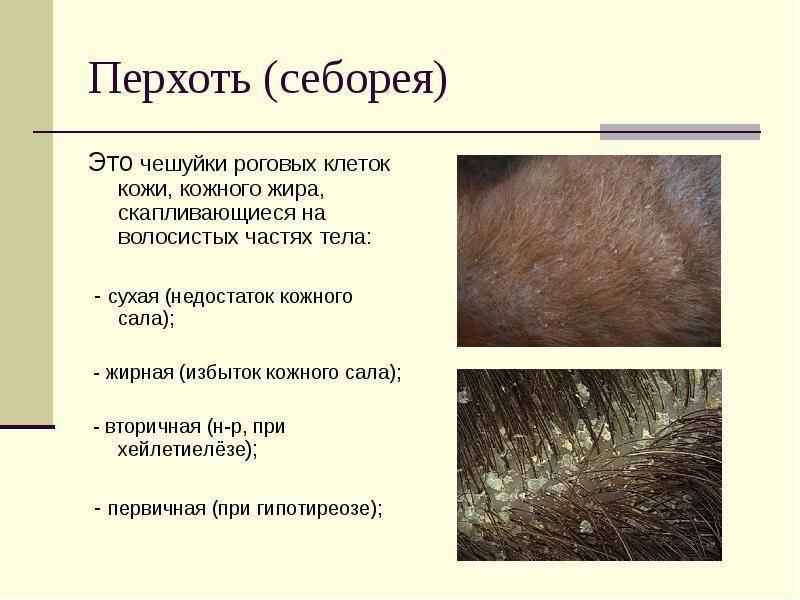 Себорейный дерматит. причины, симптомы, признаки, диагностика и лечение патологии :: polismed.com