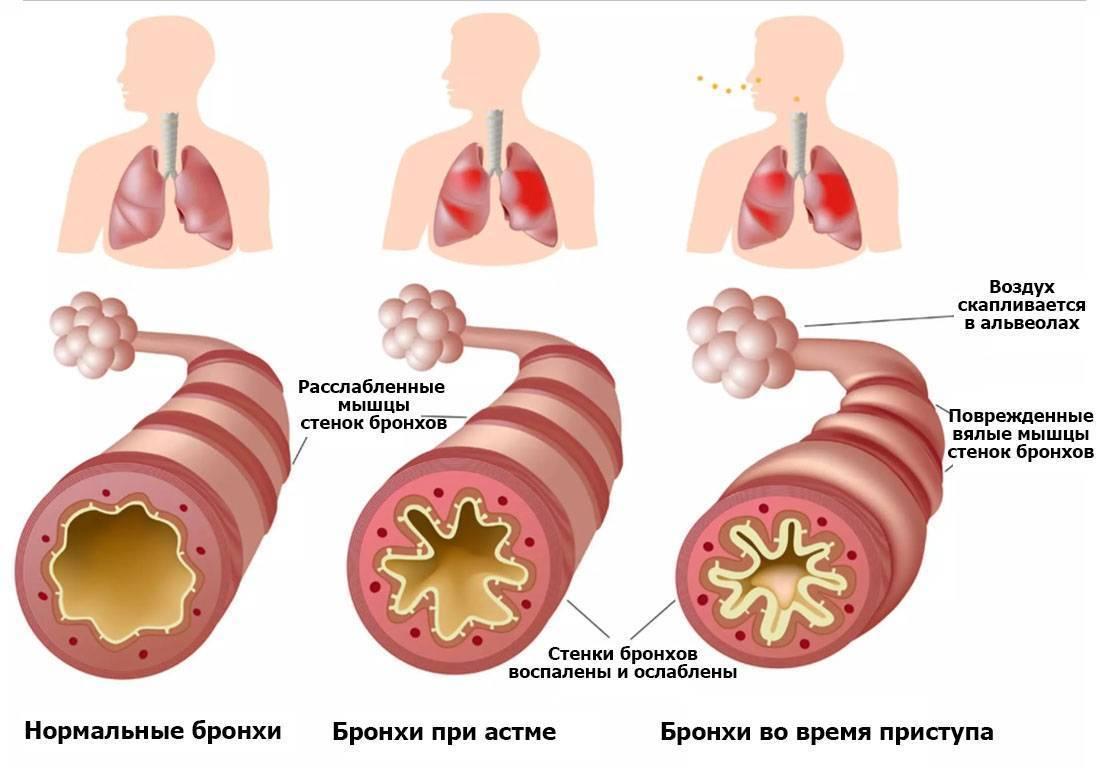 Как начинается бронхиальная астма у детей и как ее лечить