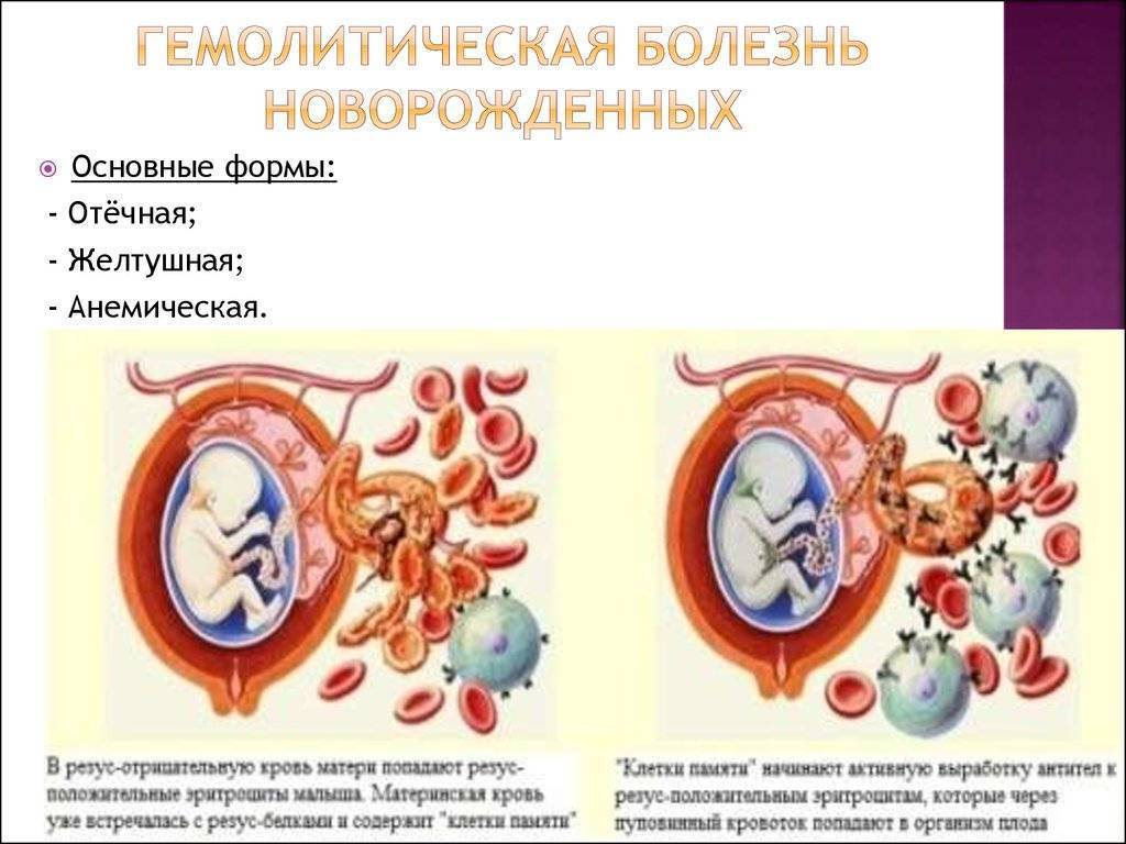 Гемолитическая болезнь новорожденных: по группе крови, плода, синдром, лечение