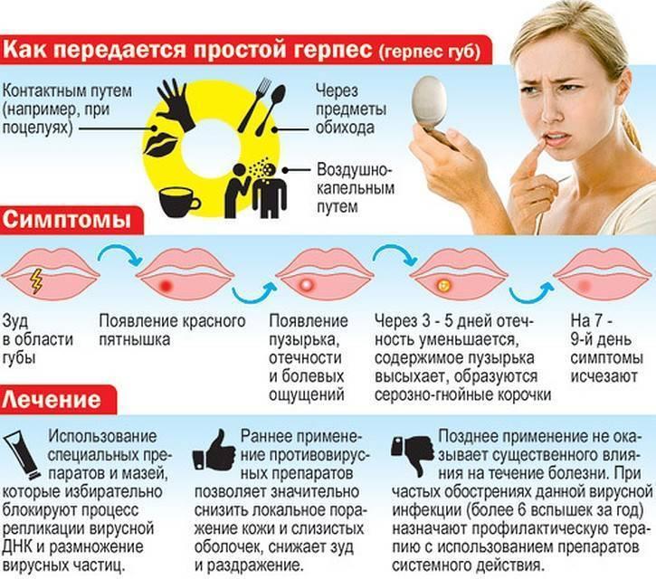Герпес у ребенка на лице: симптомы и лечение