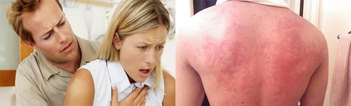 Аллергия на яйца у грудничка - неталлергие