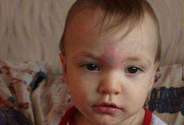 Гематома на лбу у ребенка после удара: что делать, чем лечить?