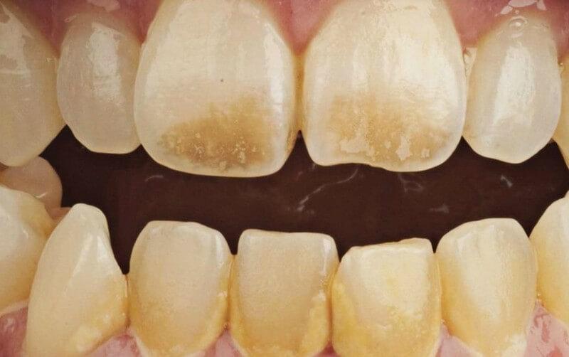 Белые пятна на зубах: причины заболевания, методы лечения, профилактика