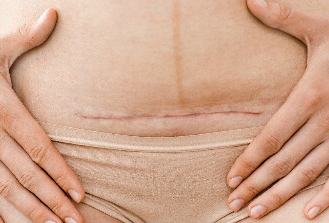 Возможные осложнения и меры профилактики, грыжа у женщины после кесарева сечения: фото и симптомы, методы лечения - все о суставах