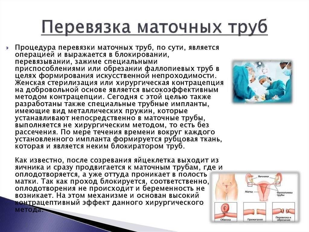 Перевязка маточных труб: эффективность процедуры