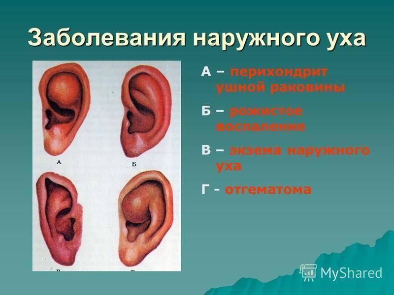 Опухла ушная раковина и покраснела у взрослого - симптомы и лечение болезней