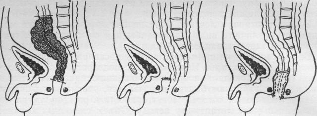 Болезнь Гиршпрунга у детей: симптомы, лечение и возможные последствия для новорожденных