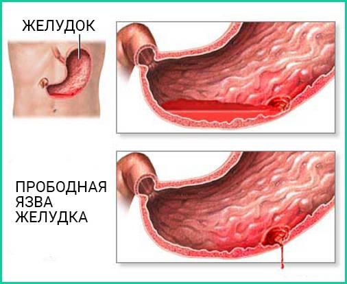 Язва луковицы двенадцатиперстной кишки: острая, хроническая, зеркальная : причины, симптомы, диагностика, лечение | компетентно о здоровье на ilive