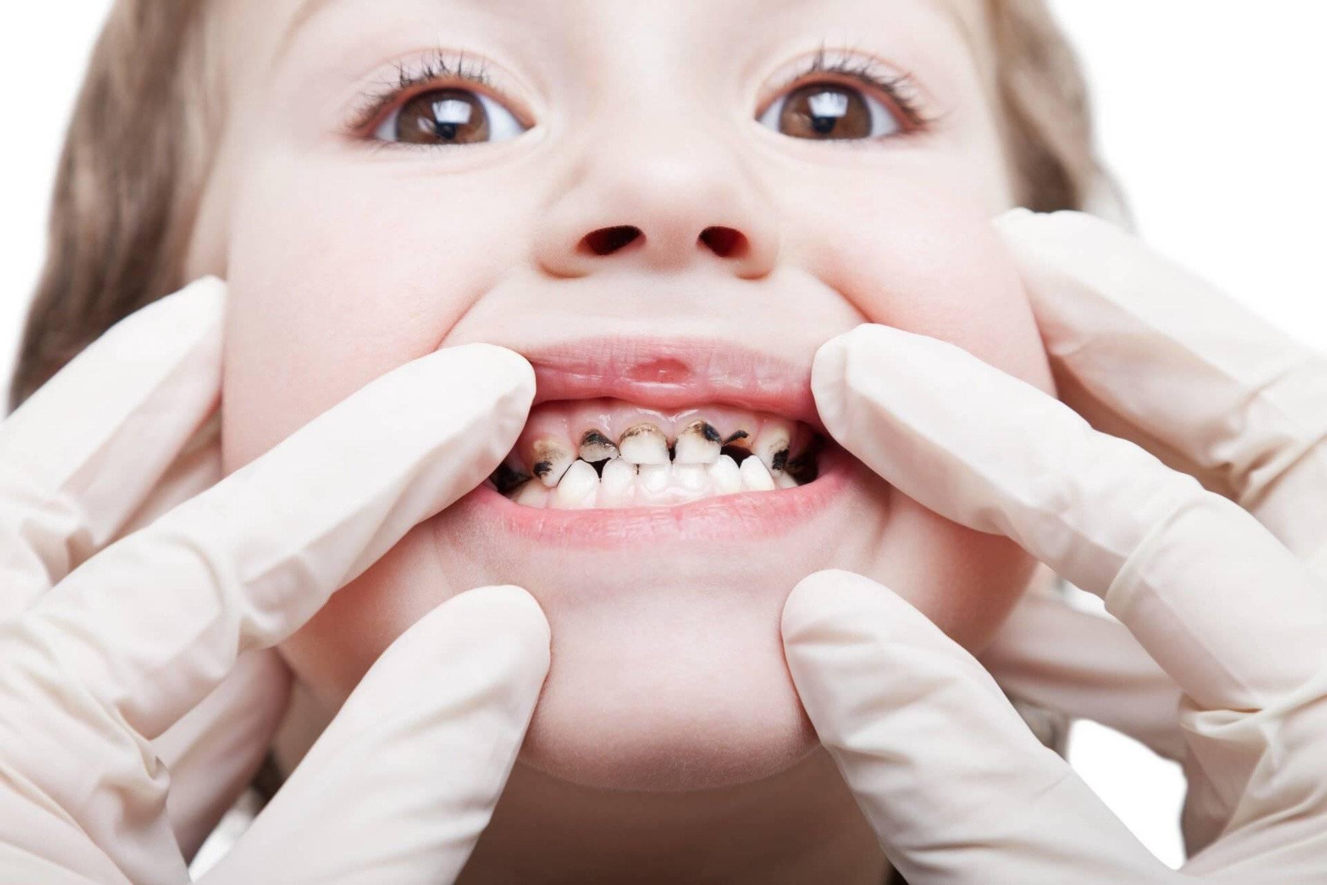 Серебрение молочных зубов: отзывы, комаровский, фото до и после, альтернативы