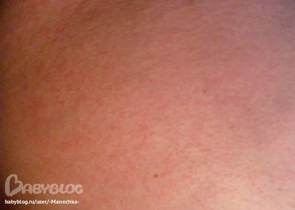 Сыпь у ребенка: причины появления сыпи на детской коже и способы ее лечения. как уменьшить зуд при сыпи