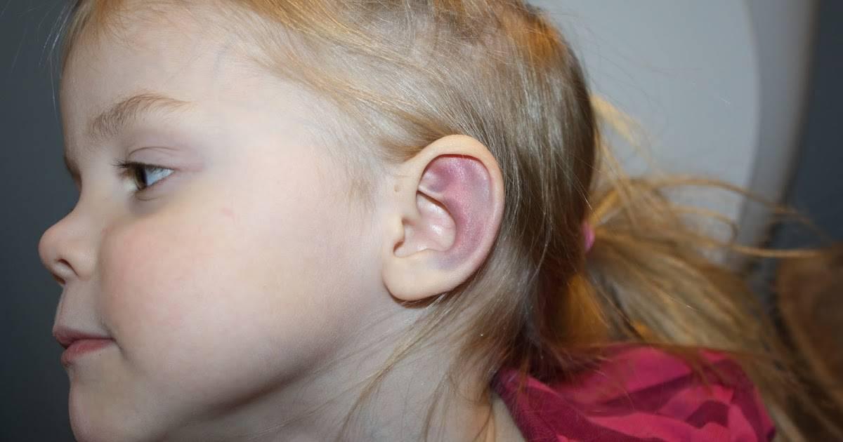 У ребенка опухло ухо и покраснело снаружи, ушная раковина горячая: причины и лечение