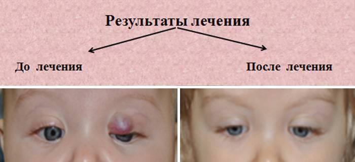 Гемангиома у новорожденных : фото, причины возникновения, лечение (удаление)