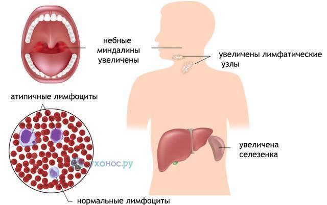 Мононуклеоз у детей: течение заболевания и народное лечение