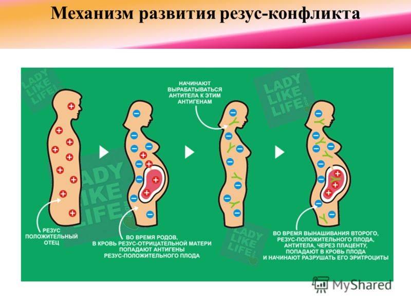 Резус-конфликт при беременности:  мирные способы разрешения - наблюдение беременности.  здоровье