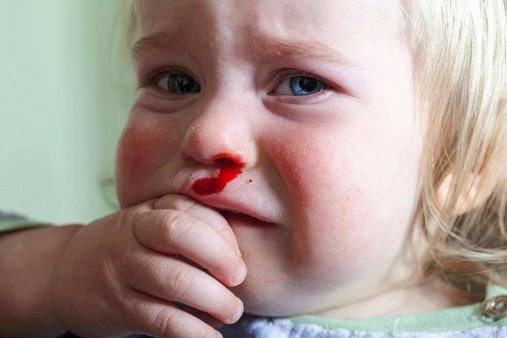 Лечение гемофилии в израиле. как лечат гемофилию а, в и с за рубежом