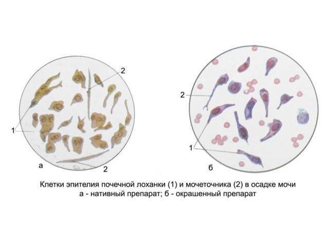 Лецитиновые зерна в спермограмме: расшифровка результатов, возможные причины понижения уровня