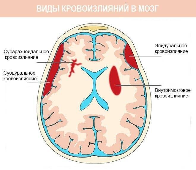 Лечение кровоизлияния в мозг у новорожденного ребенка