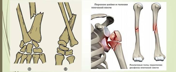 Закрытый чрезмыщелковый перелом плечевой кости: симптомы и диагностика травмы, первая медицинская помощь, лечение и реабилитация в домашних условиях