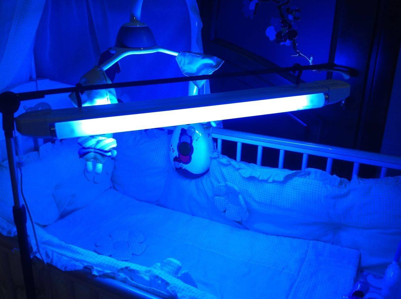 Фототерапия при желтухе у новорожденных: лечение в домашних условиях с помощью лампы