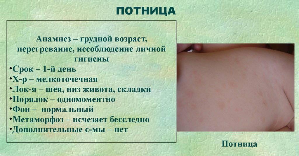 Потница на шее у грудничка: лечение и причины у новорожденных