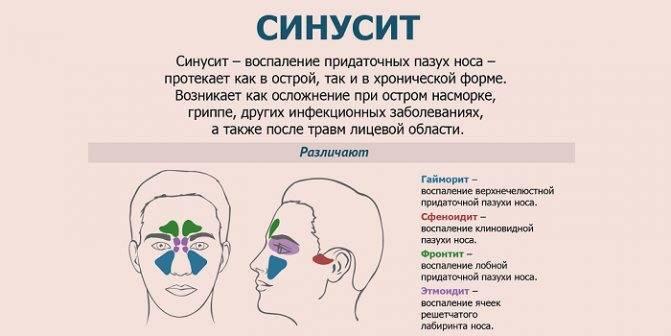 Синусит у детей: симптомы и лечение, особенности протекания болезни