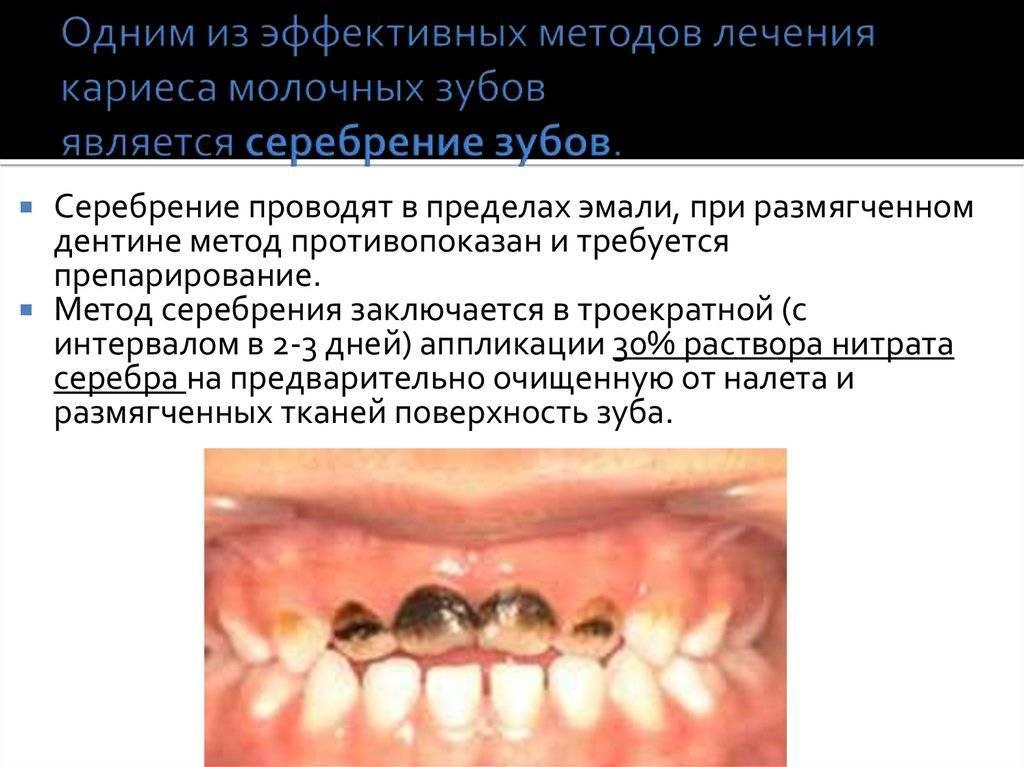 Серебрение зубов у детей: суть методики, показания, преимущества и недостатки