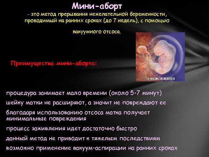 Какая ответственность предусмотрена за аборт? - савостьянова ксения вадимовна, 15 апреля 2019