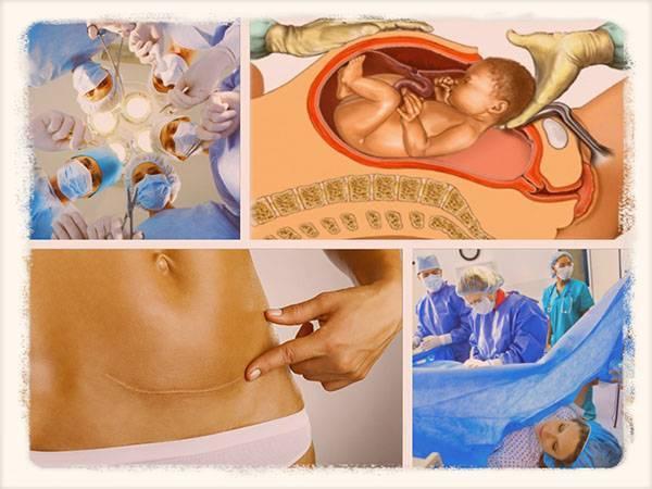 Многоплодная беременность: естественные роды или кесарево сечение? - беременность