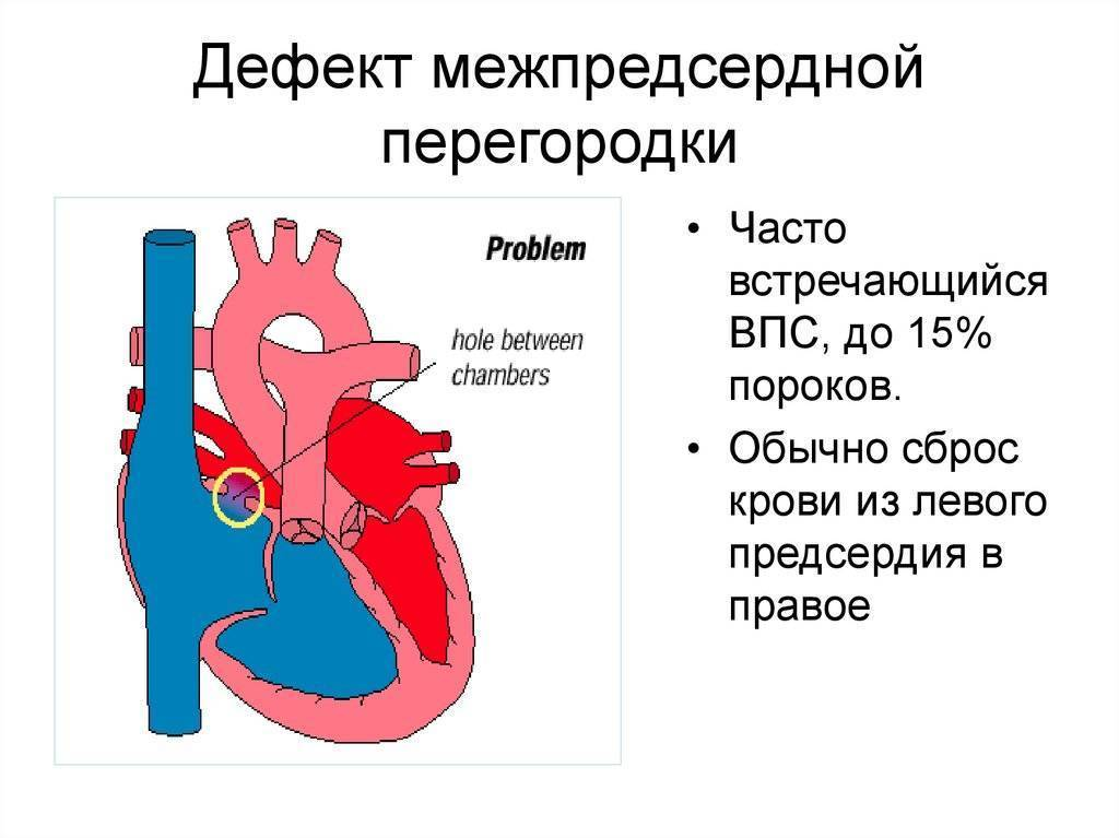 Подозрение на порок сердца у новорожденных детей: причины и лечение болезни