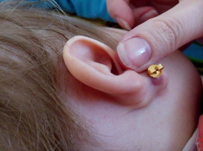 Гноится ушко у ребенка в месте прокола. что делать, если гноится в ухе после прокола