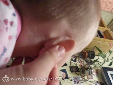 Шишка за ухом у ребенка - мамин советник