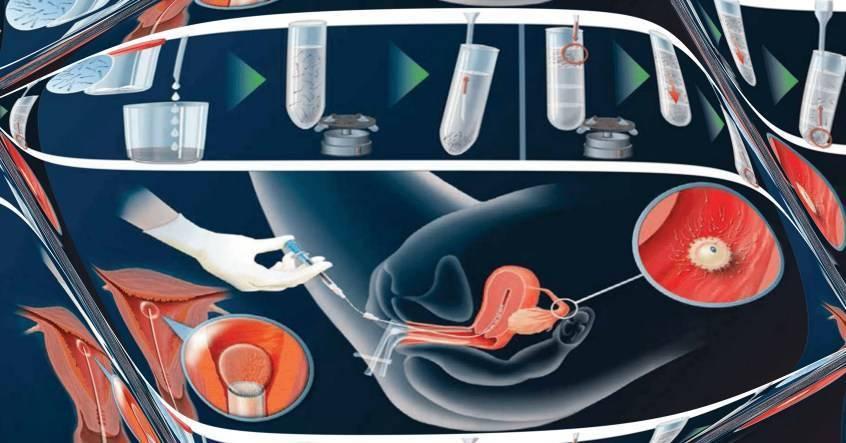 Операция по удалению маточной трубы (тубэктомия): показания, проведение, реабилитация и последствия