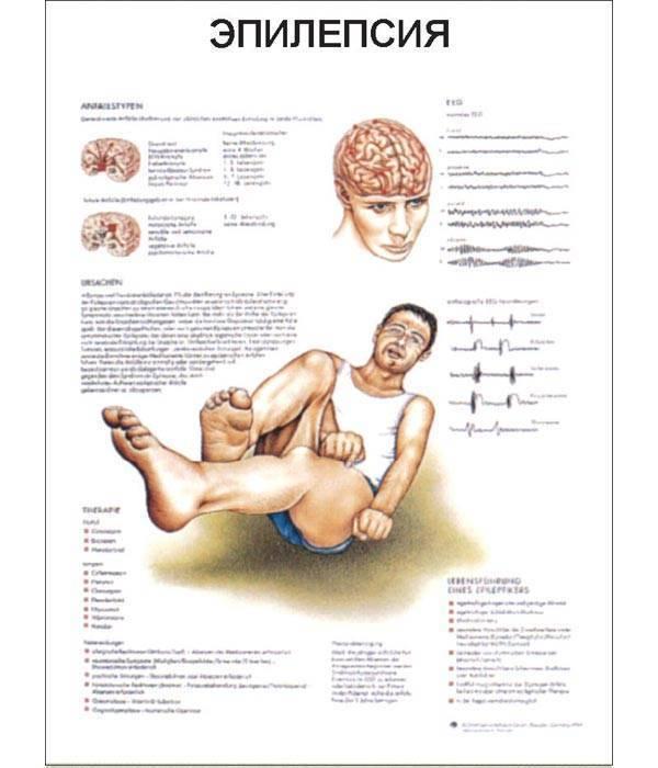 Эпилепсия - причины возникновения у детей, психосоматика, симптомы и лечение: что это и каковы проявления заболевания у ребенка, почему появляются эпилептические припадки?