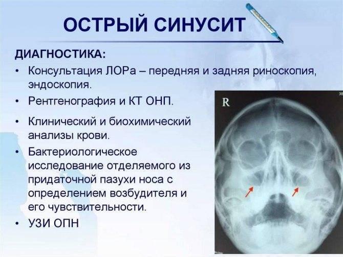 Лечение хронического синусита у ребенка