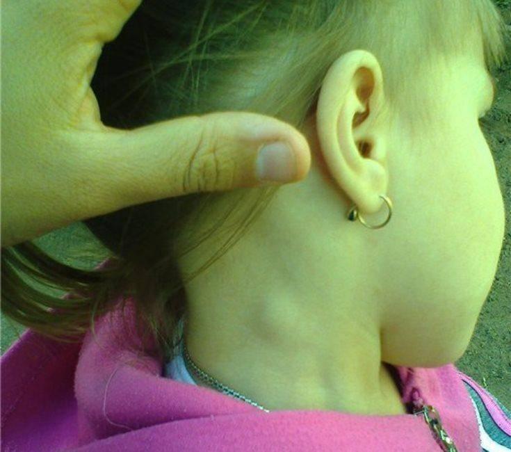 Подвижный шарик на шее у ребенка. шишка на шее у ребенка