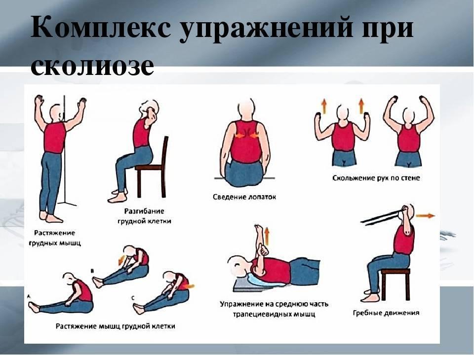 Лфк при сколиозе у детей: комплекс упражнений для разных степеней искривления