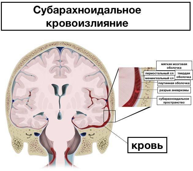 Кровоизлияние в мозг у новорожденных: причины, симптомы и методы лечения | musizmp3.ru