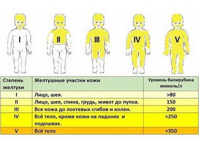 Все о причинах и последствиях желтухи у новорожденных. лечение желтушки