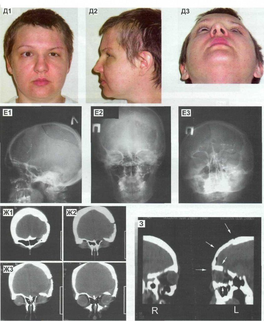 Перелом черепа у ребенка: особенности, симптомы и последствия травмы