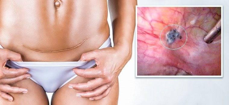 Боли после кесарева | причины и лечение боли после кесарева сечения компетентно о здоровье на ilive