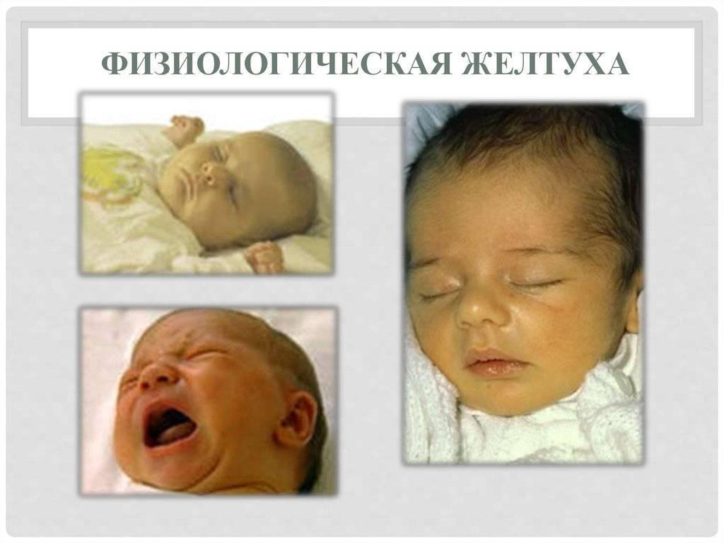 Симптомы и последствия ядерной желтухи новорожденных - твоя печенка