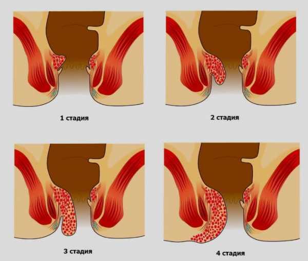 Геморрой у детей старше 2 лет: может ли быть, как выглядит, симптомы, как лечить