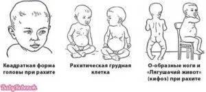Симптомы и первые признаки рахита у грудничков (46 фото): что это такое, лечение и профилактика у детей до 1 года и новорожденных, 1 и 2 степень